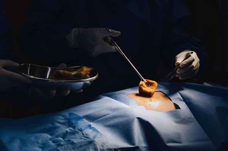 Qual propósito da avaliação pré-operatória e risco cirúrgico?