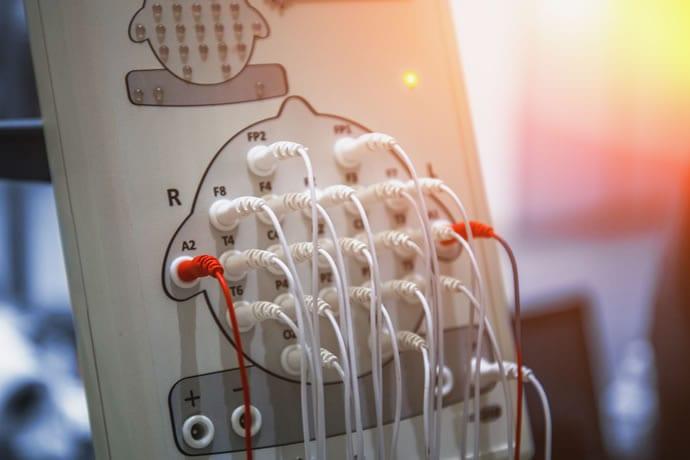 Comprar vs Alugar vs Comodato aparelho de EEG