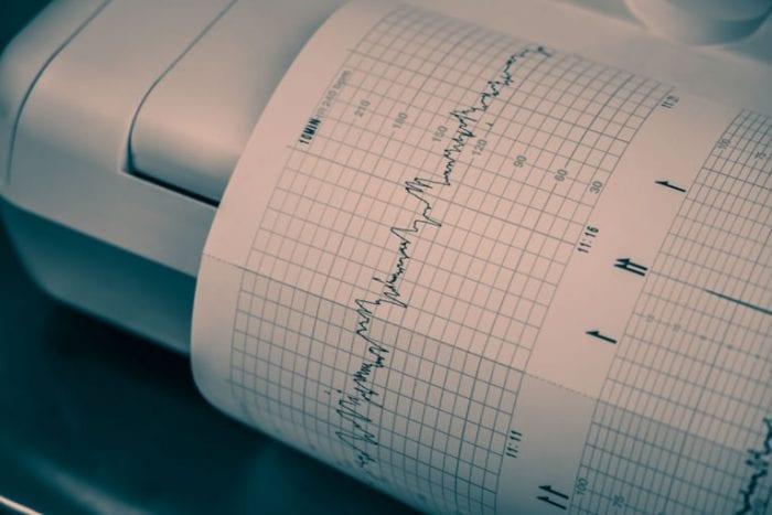 O eletrocardiógrafo com laudo a distância é confiável?