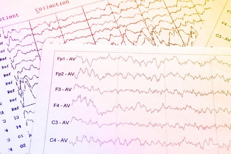 Quantos tipos de exames posso realizar com o aparelho de EEG?
