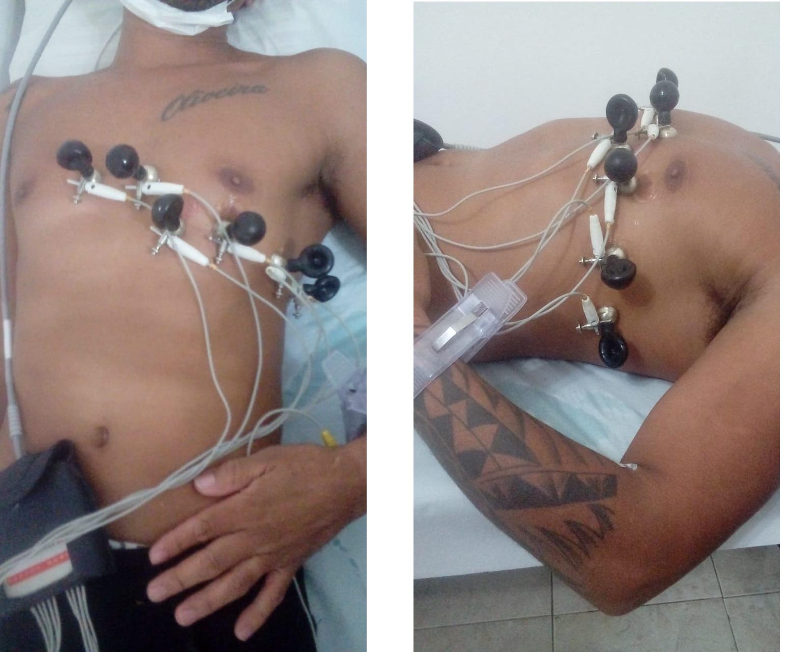 Eletrodos precordiais