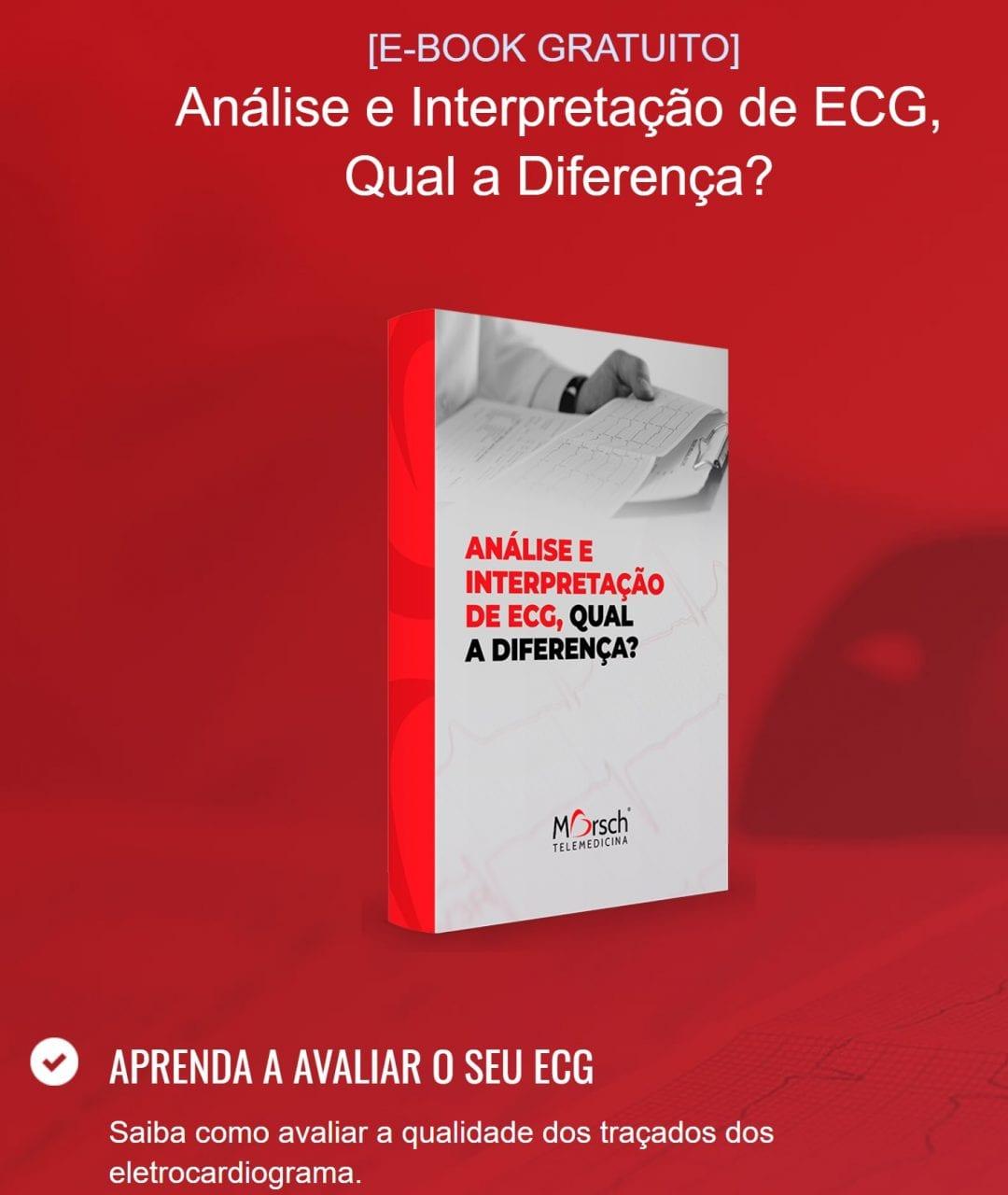 E-book mostra a diferença entre analisar e interpretar um ECG