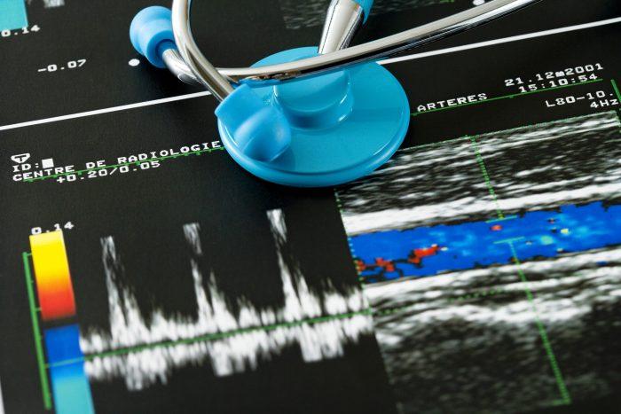 Veja os principais tipos de ultrassom com Doppler?