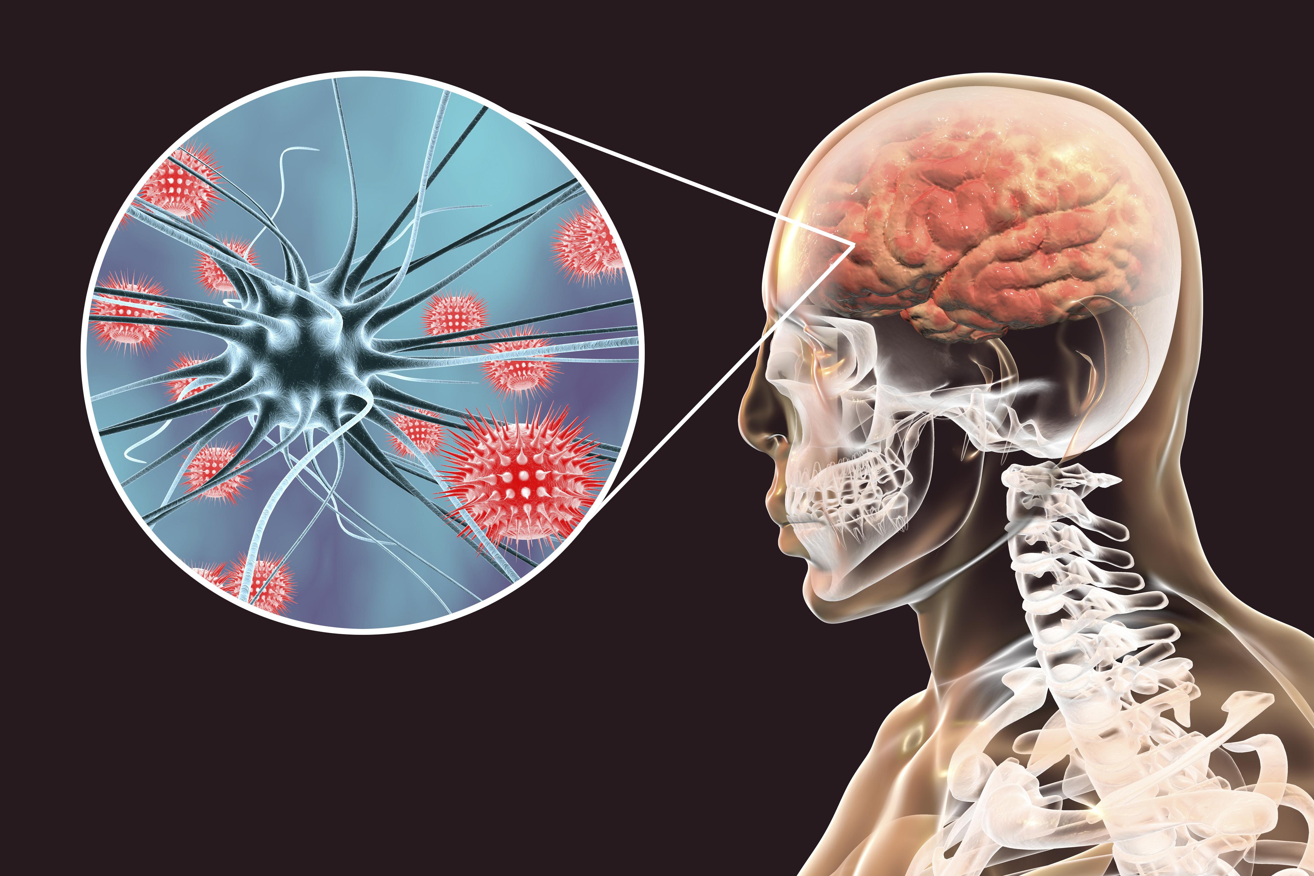 Encefalite conheça as principais causas, sintomas e tratamentos