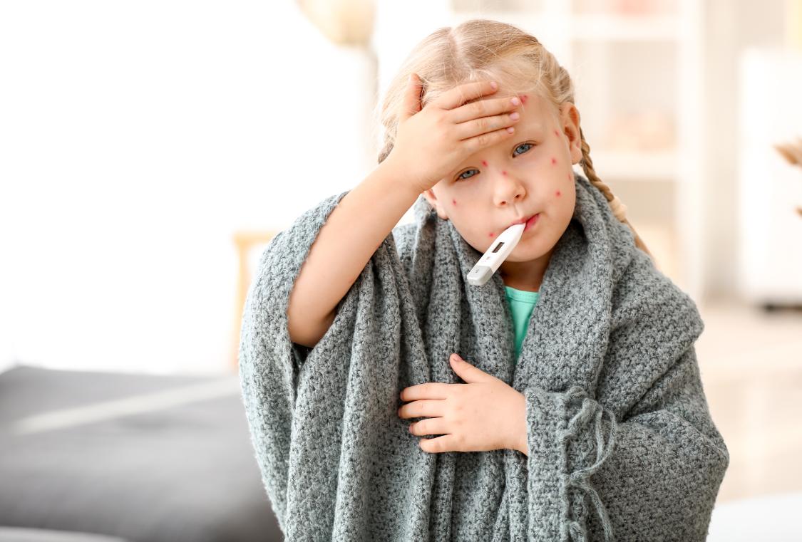 Doenças virais: saiba o que é o sarampo