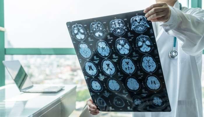 O que causa as dores de cabeça?