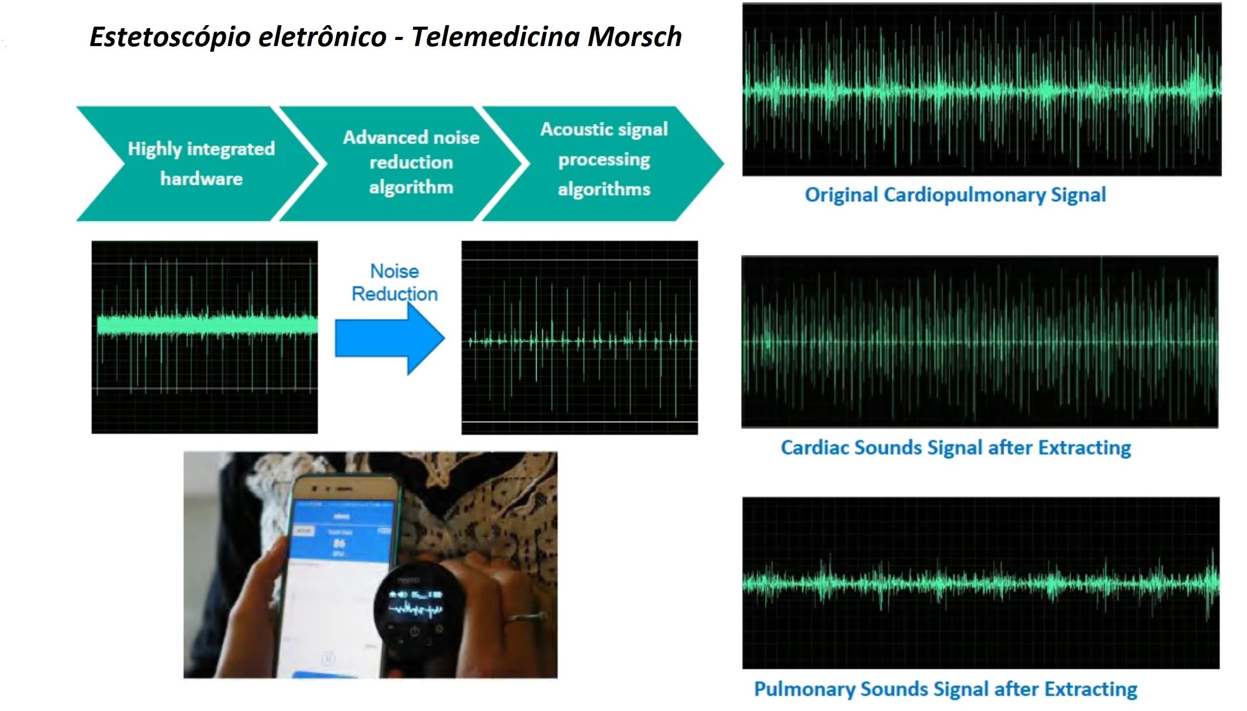Estetoscópio digital na telemedicina