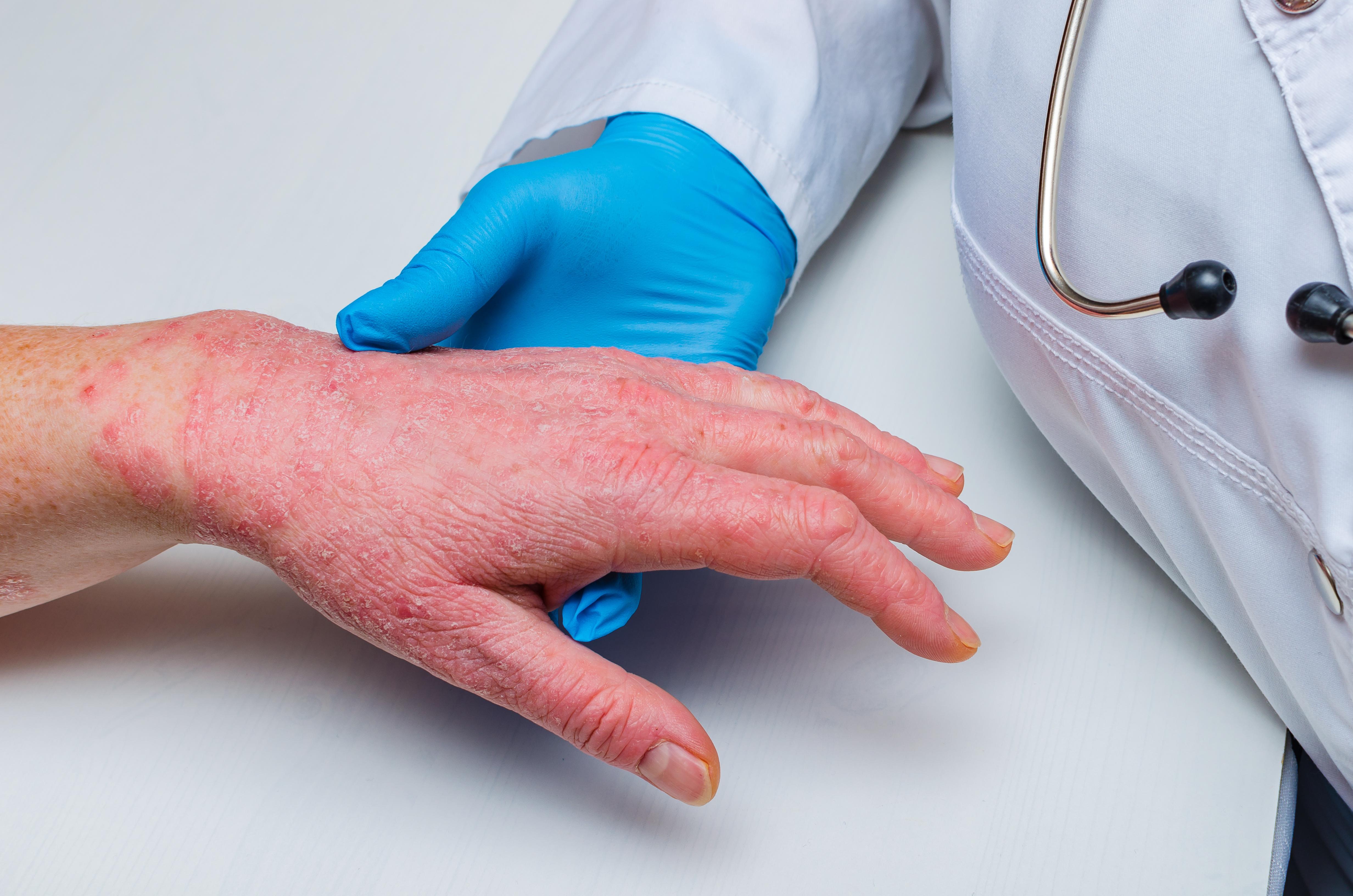 Como é feito o diagnóstico de dermatite atópica?