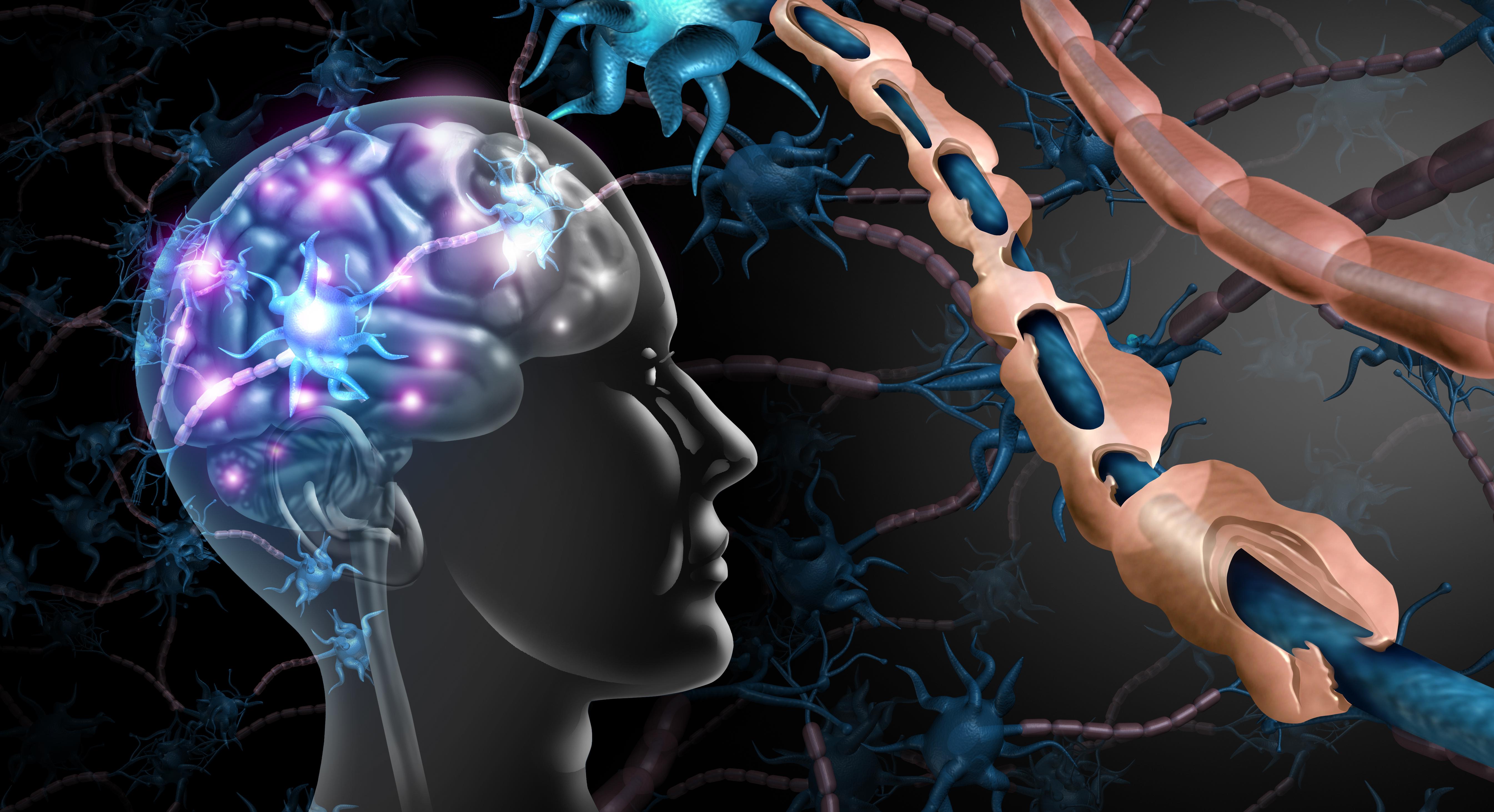 Sobre a progressão de incapacidade da esclerose múltipla