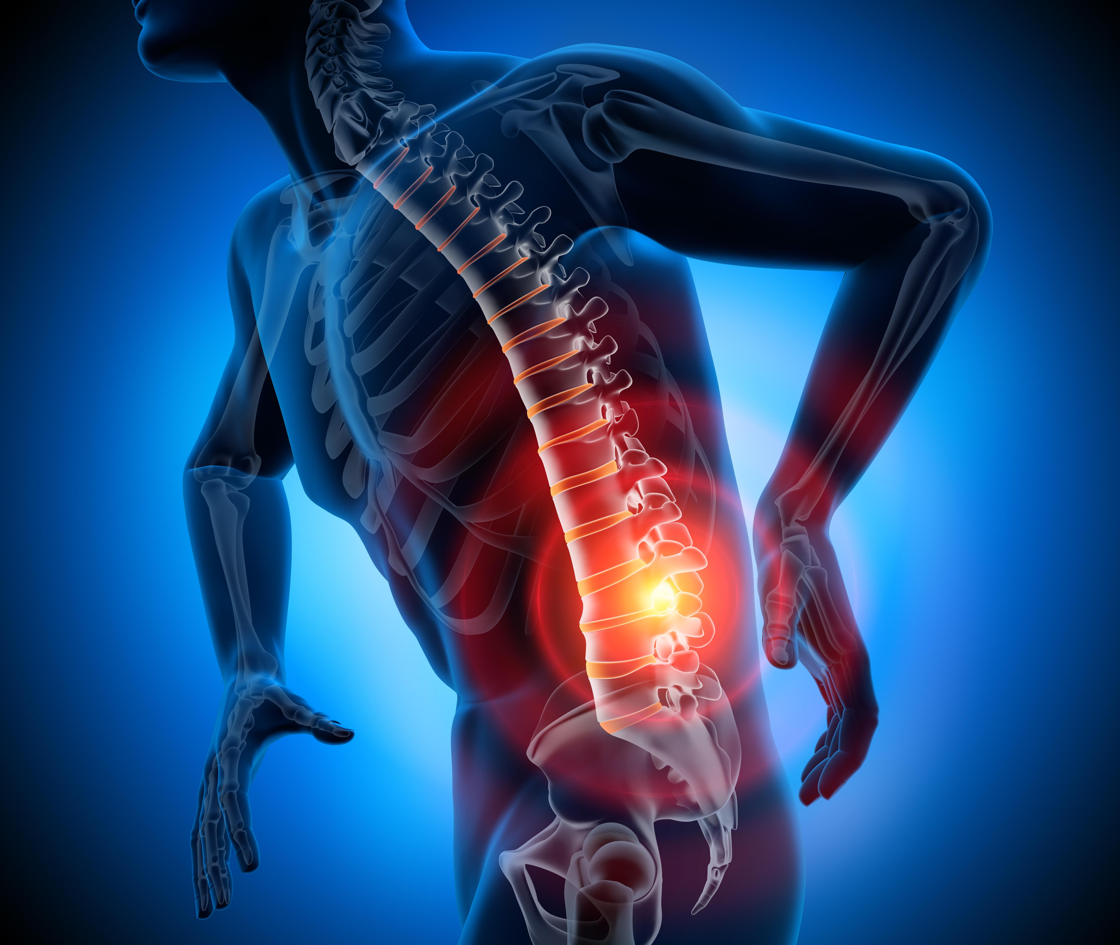 Principais sintomas de hérnia de disco